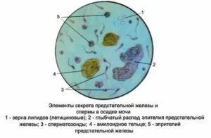 Спермограмма: лецитиновые зерна, эритроциты, слизь, амилоидные тельца