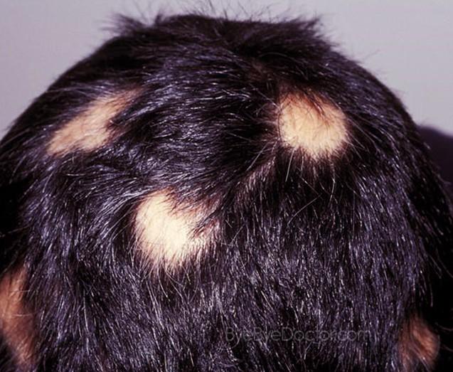 Диагностика очаговой алопеции у детей, развитие болезни и ее лечение