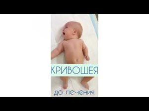 Кривошея у грудничков и новорожденных: признаки у ребёнка, симптомы и лечение, фото