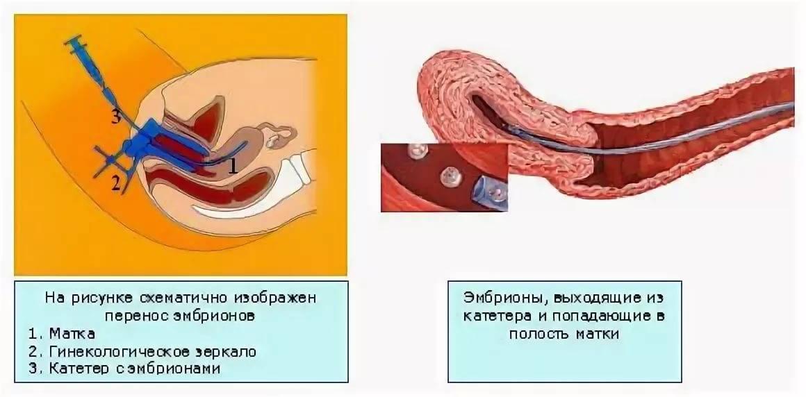 Почему после переноса эмбрионов тянет живот и болит поясница, как перед месячными, хорошо это или плохо?