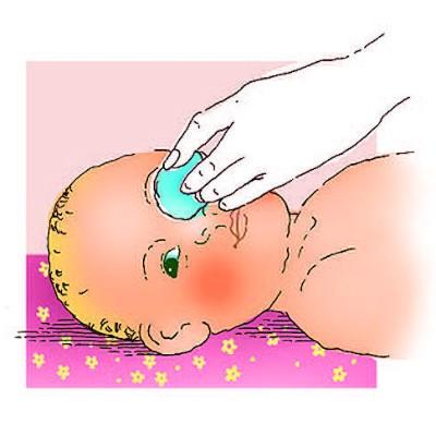 Алгоритм закапывания капель в глаза, нос, ухо маленькому ребенку. — медицина. сестринское дело.