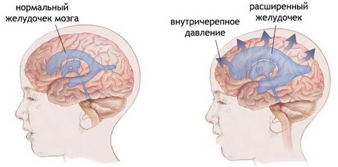 Псевдокиста в голове у новорожденного: особенности патологии и ее лечение
