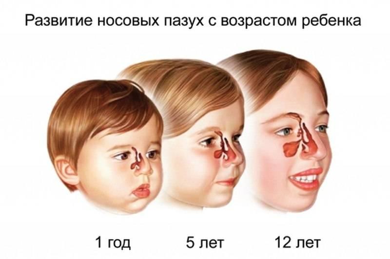 Гайморит у ребенка 3 лет - симптомы и лечение, признаки у детей, может ли быть