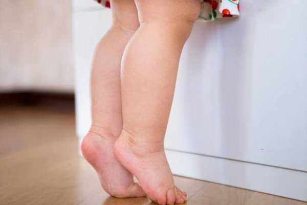 Почему ребенок ходит на носочках: причины, методы лечения, мнение доктора комаровского