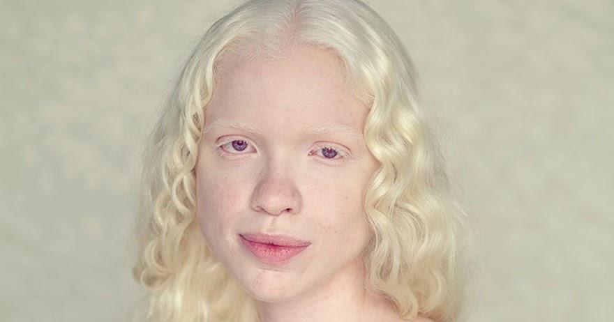 Альбинизм у человека: что это такое, симптомы, лечение, причины