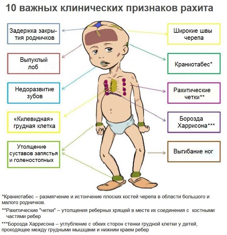 Рахит у ребенка. причины, симптомы, лечение и профилактика рахита у детей | здоровье детей