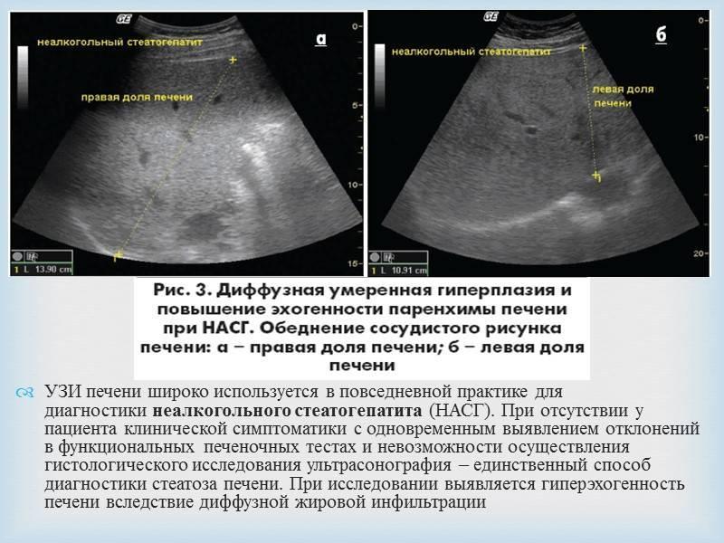 Гепатомегалия у детей   симптомы и лечение гепатомегалии у детей   компетентно о здоровье на ilive