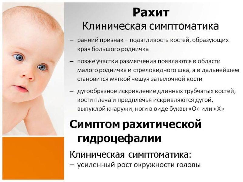 Е. комаровский: рахит - лечение, симптомы и признаки у детей
