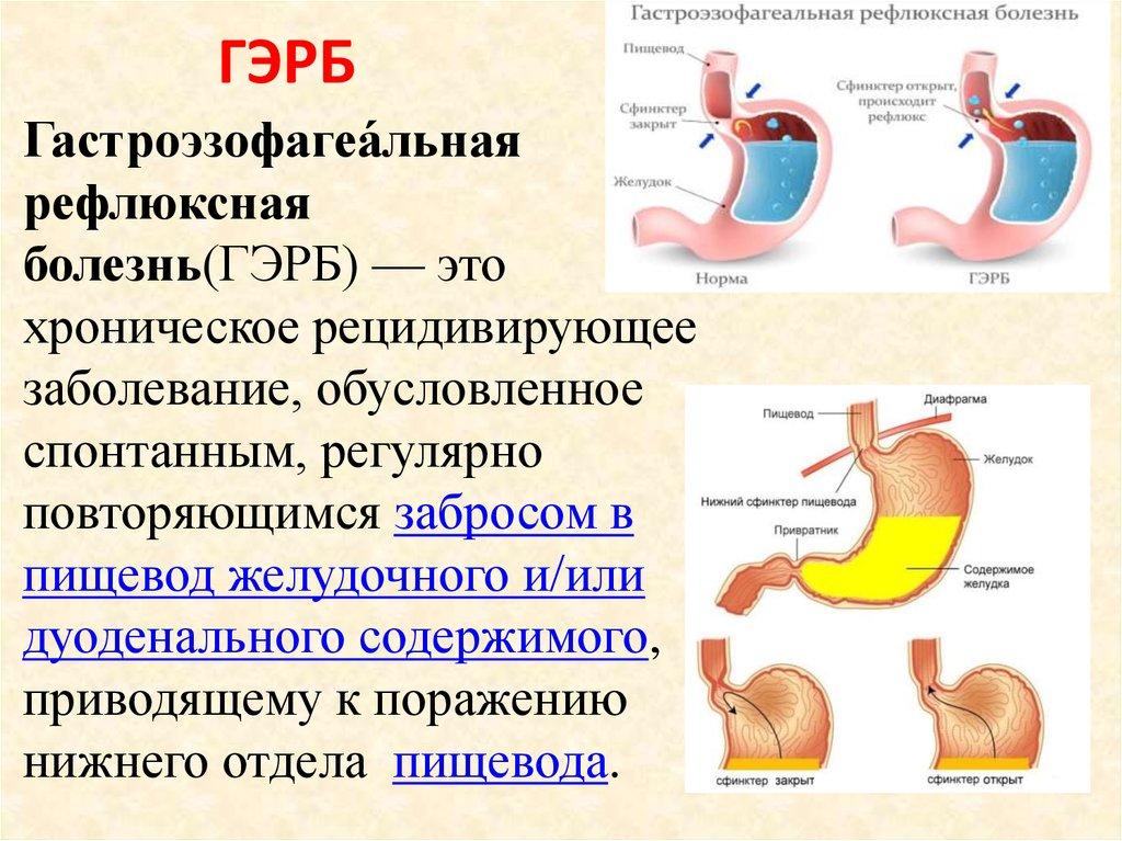 Эзофагит у детей: основные симптомы и лечение