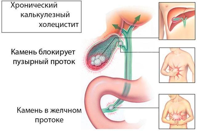 Какие препараты эффективно лечат холецистит