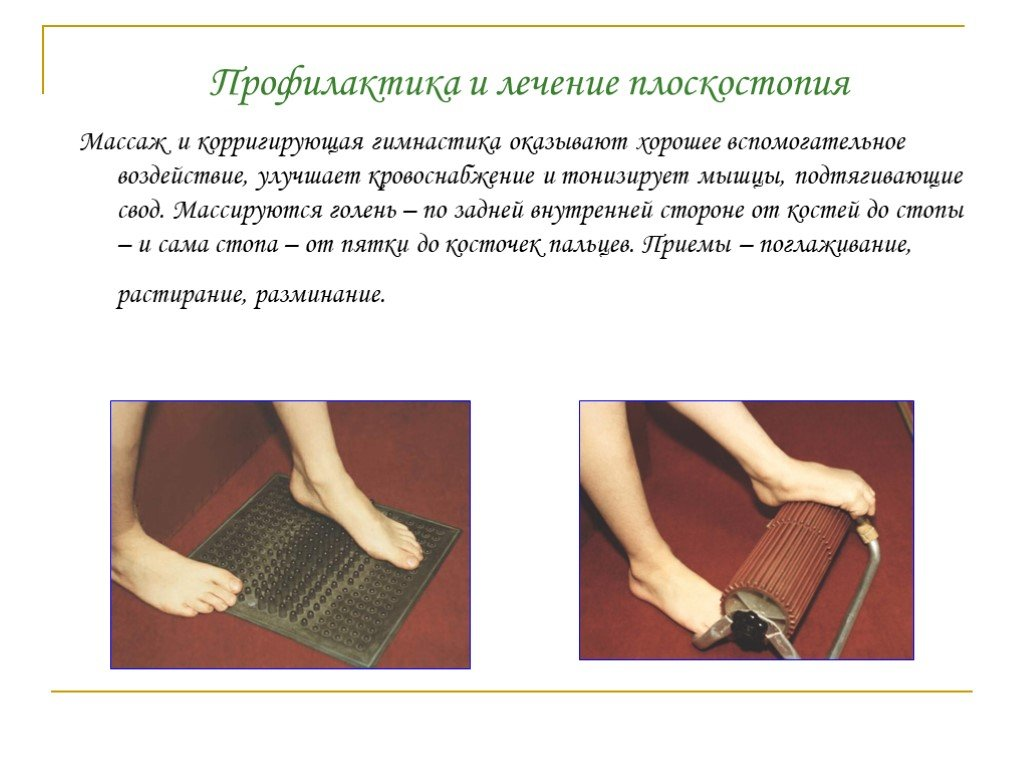 Как делать массаж ребенку при плоскостопии: схема