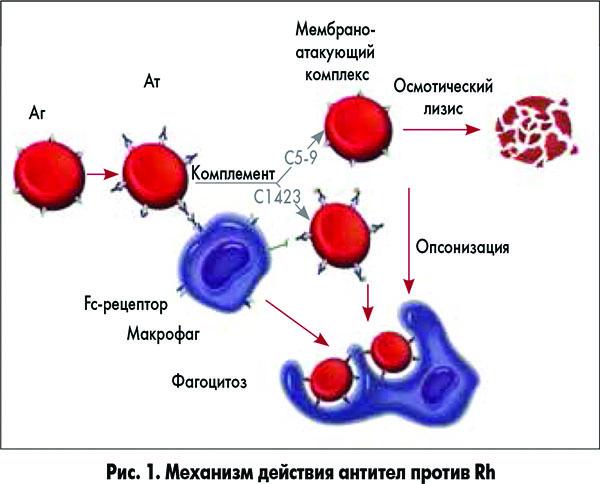 Гемолитическая болезнь новорожденных: по группе крови, плода, последствия для ребенка, синдром, лечение, что это такое