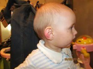 Ребенок ударился головой: на что обратить внимание, к какому врачу обращаться. последствия травмы головы