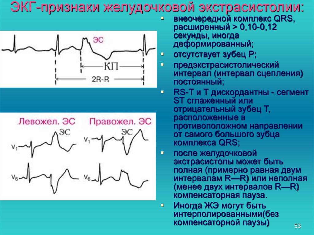 Экстрасистолия сердца: что это такое, причины, симптомы, лечение и последствия заболевания у взрослых и детей