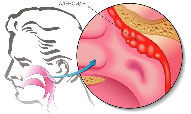 Лечение аденоидов у детей без операции: как уменьшить разрастание и вылечить патологию, мнение комаровского