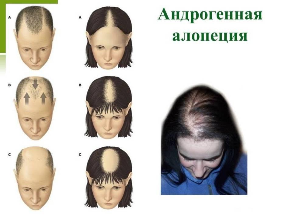 Гнездная алопеция у детей лечение. лечение алопеции у детей