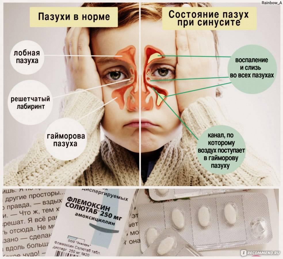 Гайморит у детей: симптомы, лечение и 3 совета от педиатра