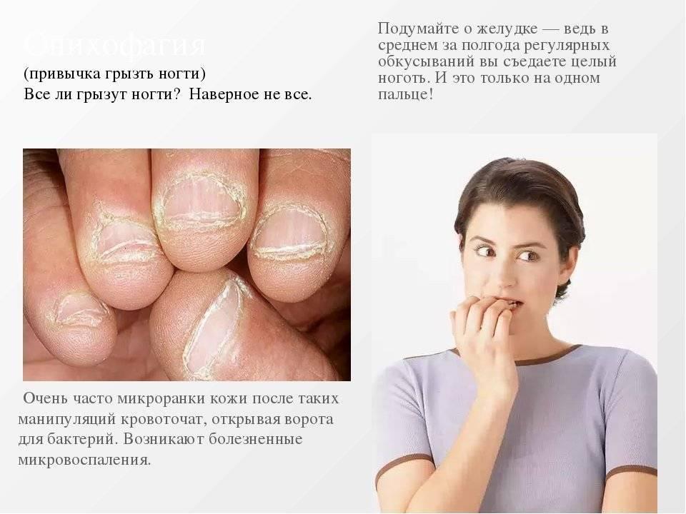 Как отучить ребенка грызть ногти: почему происходит, советы психологов