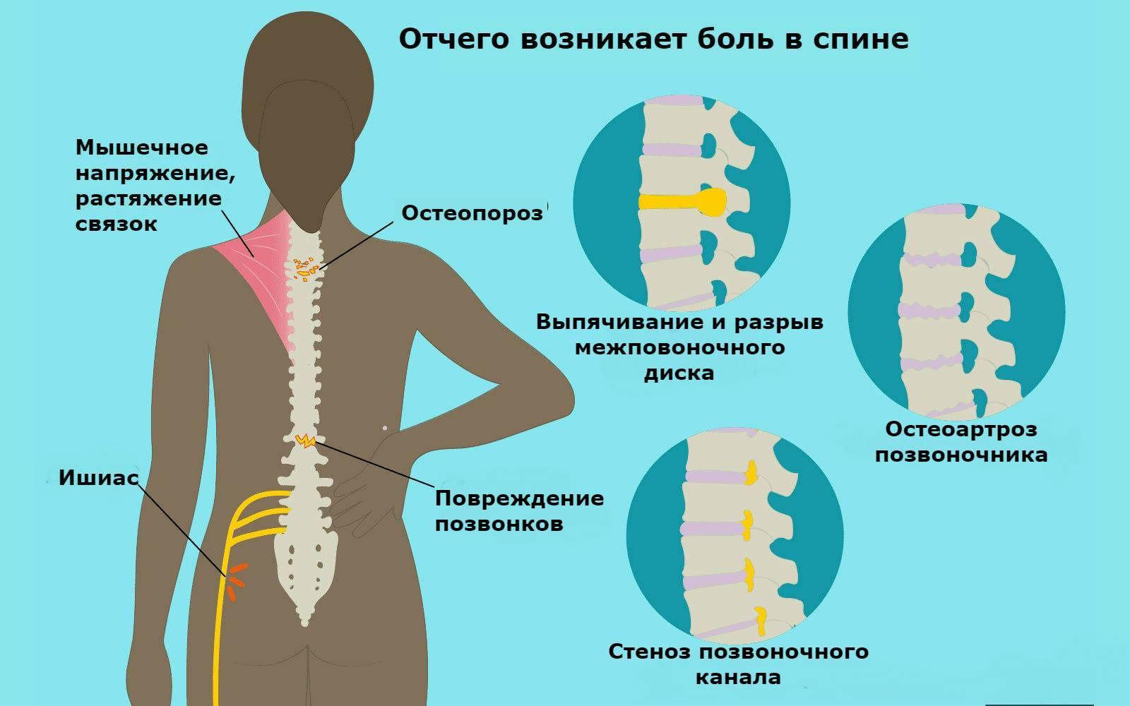 Остеохондроз позвоночника: симптомы, лечение и профилактика