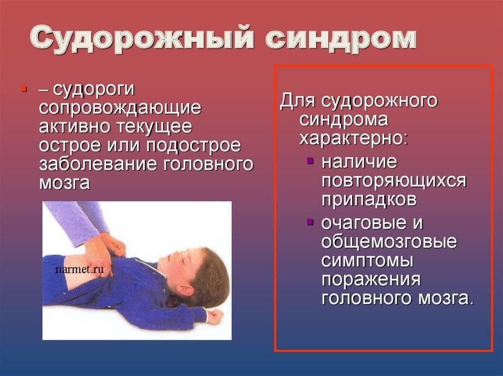 Эпилепсия у детей — что нужно знать родителям