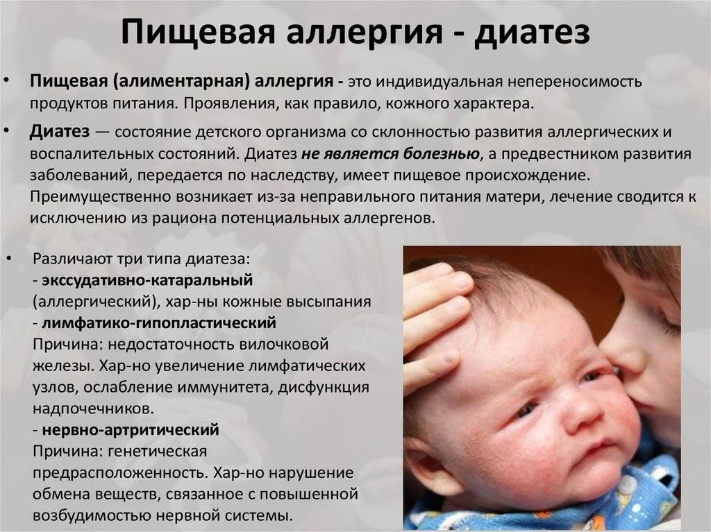 Аллергия на глютен у ребенка: симптомы, как проявляется