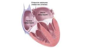 Открытое овальное окно в сердце у подростка - все про гипертонию