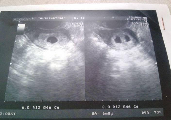На каком сроке можно определить наличие двойни – когда на УЗИ видно многоплодную беременность?