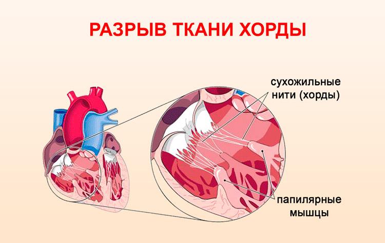 Аномальная хорда левого желудочка у детей — сердце