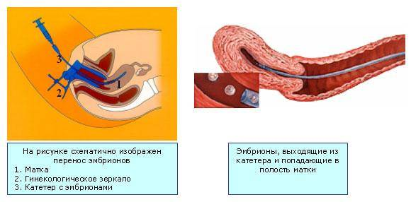 Перенос эмбрионов при эко: рекомендации по подготовке к подсадке и по образу жизни после нее, как себя вести в последующие дни, ощущения в удачном протоколе
