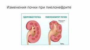 Болят почки при месячных – основные причины неприятных ощущений, меры профилактики