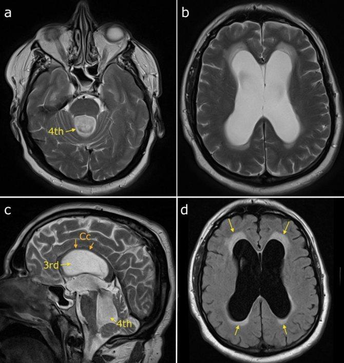 Гидроцефалия головного мозга у детей: 4 ведущих метода диагностики и 2 подхода к лечению