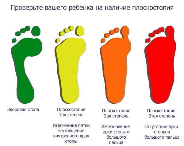 Плоскостопие у детей – причины, симптомы, диагностика и лечение в домашних условиях