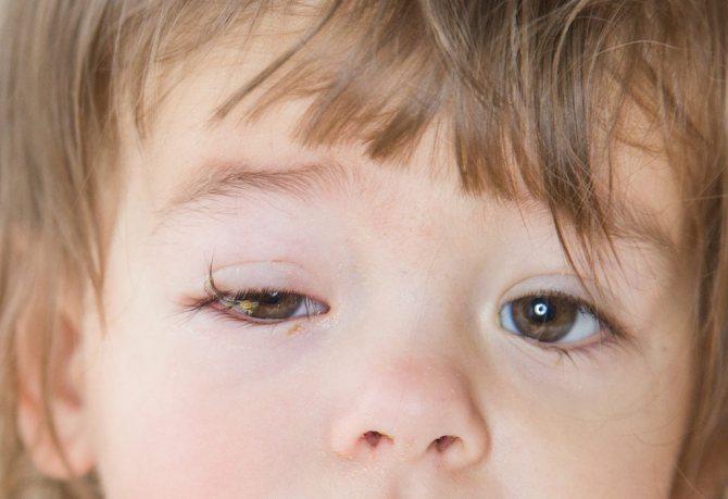 Конъюнктивит у детей - лечение, симптомы, виды, последствия