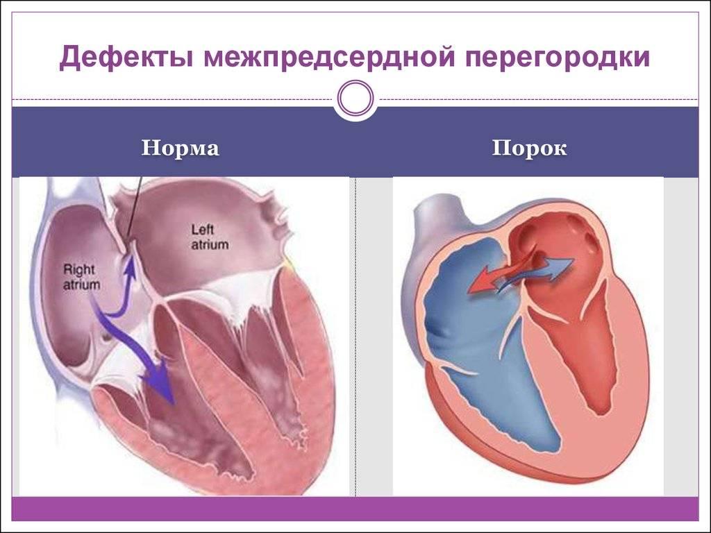 Дефект межпредсердной перегородки у новорожденных, детей и взрослых