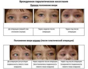 Косоглазие у новорожденных: причины, диагностика и методы лечения — глаза эксперт