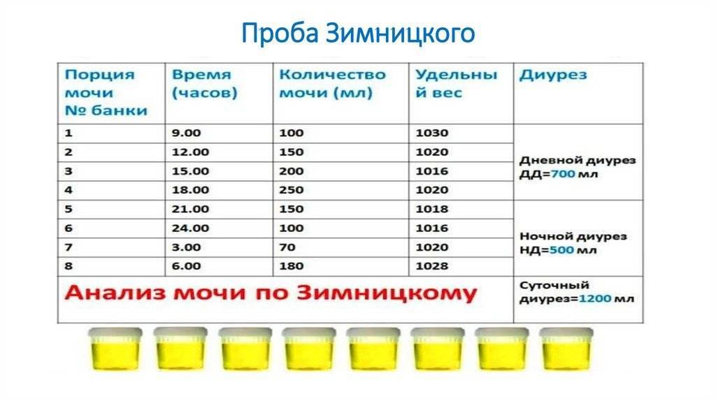 Анализ мочи по Зимницкому для детей: сбор материала, норма и расшифровка результатов