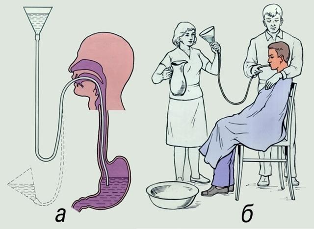 Промывание желудка детям разного возраста