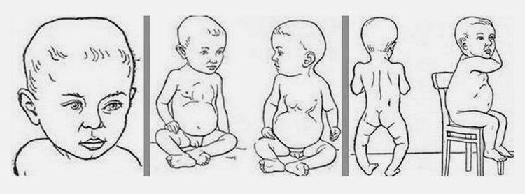 Рахит у грудничков признаки, лечение и профилактика