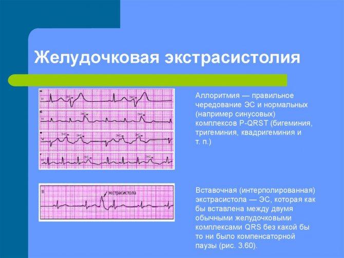 Частая экстрасистолия у ребенка - вопрос кардиологу - 03 онлайн