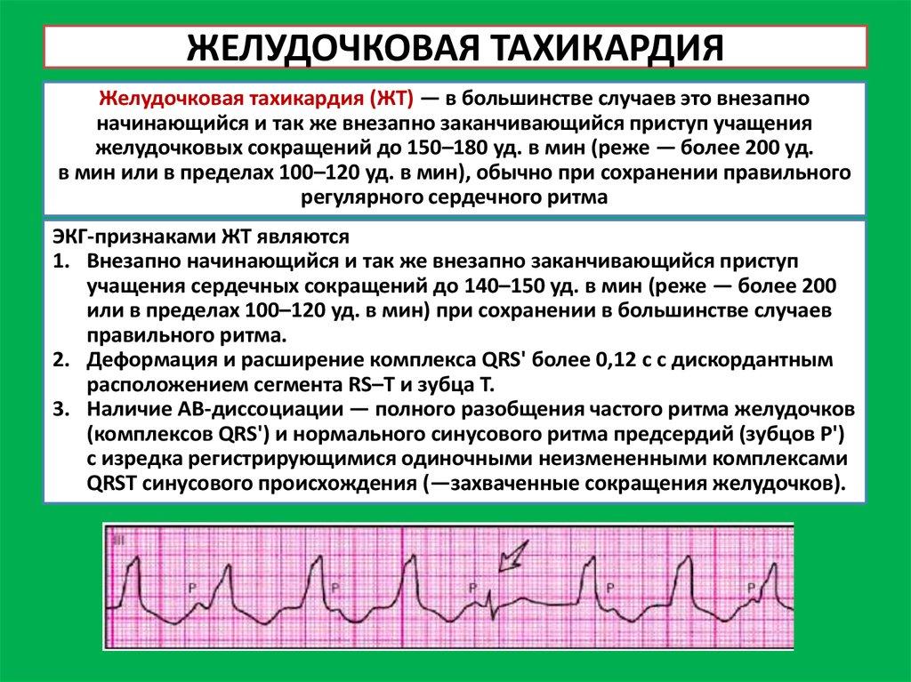 Тахикардия сердца у детей: что это такое, чем опасна и как лечить?
