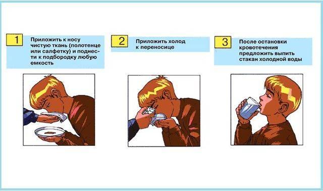 Кровь из носа у ребёнка причины