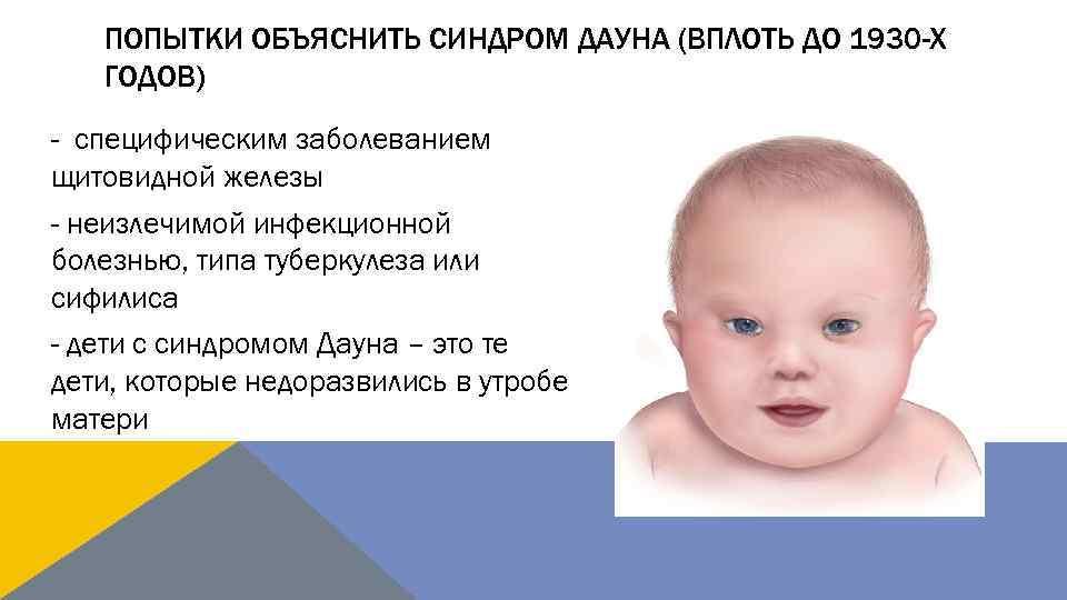 Причины возникновения синдрома дауна