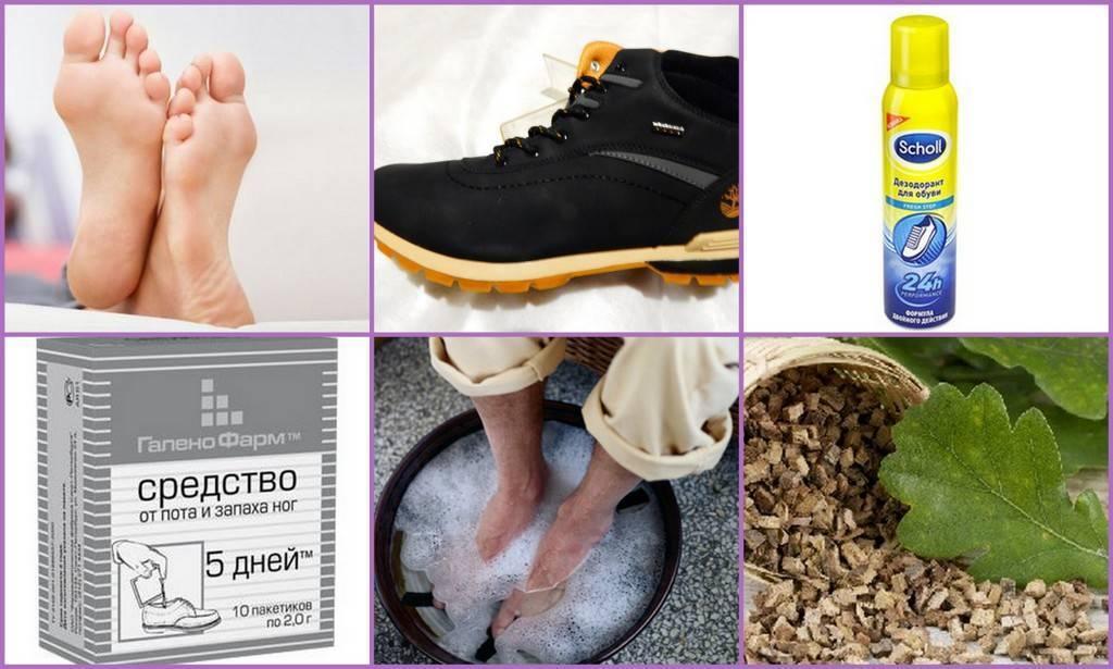 Как избавиться от запаха ног в домашних условиях - обзор способов и средств