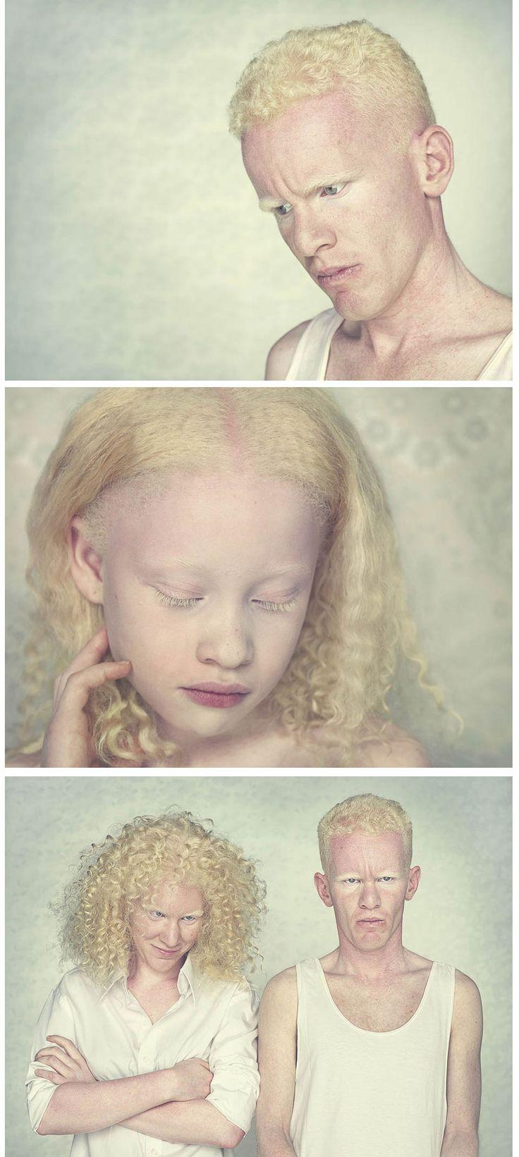«белая ворона», или особенности здоровья и развития ребенка-альбиноса. альбинизм – симптомы. но прозвища же вам наверняка давали